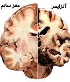 مقاله درمورد آلزایمر
