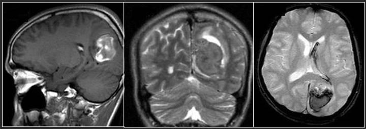 دانلود پاورپوینت ارزیابی خونریزی های مغزی در MRI